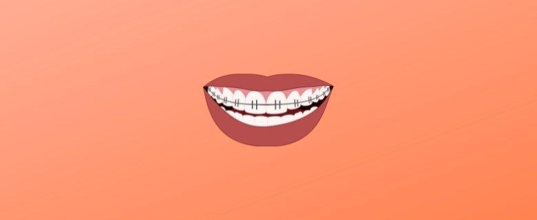 Ağız Ve Diş Sağlığı (2 Yıllık) Taban Puanları ve Başarı Sıralamaları, Ağız Ve Diş Sağlığı (2 Yıllık) Önlisans Taban Puanları